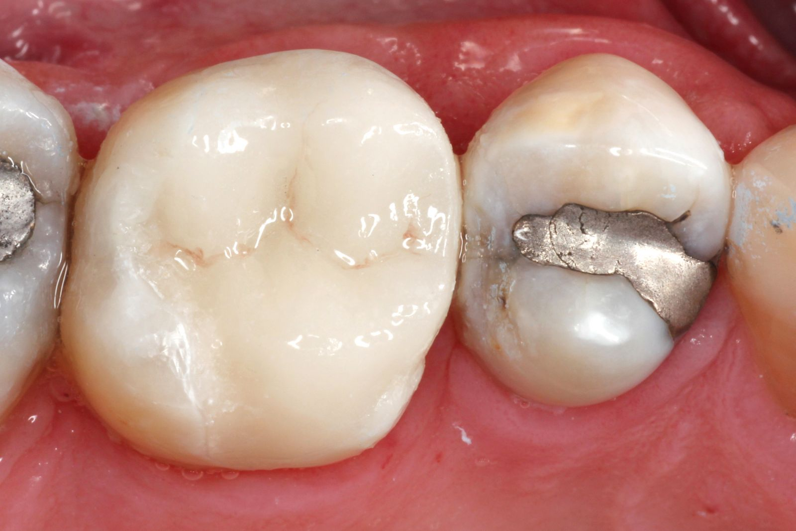 After CEREC